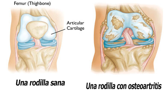 Artritis-de-la-rodilla
